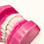 入れ歯との違い